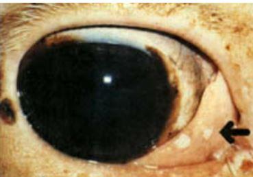 10-eye-tumor ورم حليمي كامل النمو في بقره