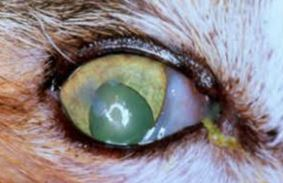 التهاب الملتحمه الايوسينوفيلي لقطه كصفيحات بيضاء تغطي جزئيا اجزاء من القرنيه وتكوين اوعيه دمويه جديده