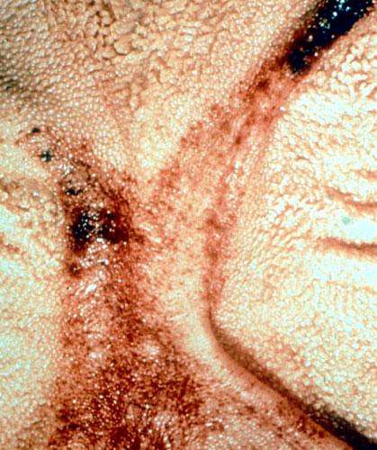 اللسان الأزرق فى الأغنام Blue tongue: عديد من أنزفه المخاطية على أعمدة الكرش .