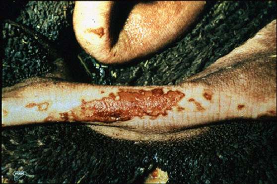 Foot and mouth diseases حمى قلاعية : مساحة متآكله على أعمدة الكرش