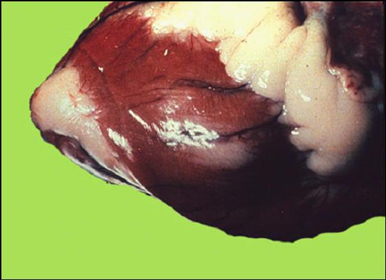 Foot and mouth diseases حمى قلاعية : بقرة - خطوط بيضاء من الموات فى عضلة البطين .