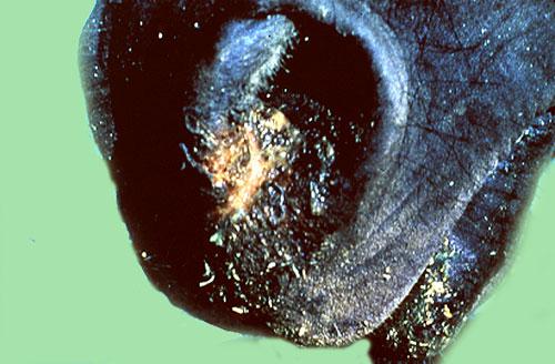 التهاب الفم الحويصلى Vesicular stomatitis : حويصلات ونتح حول فتحة الأنف .