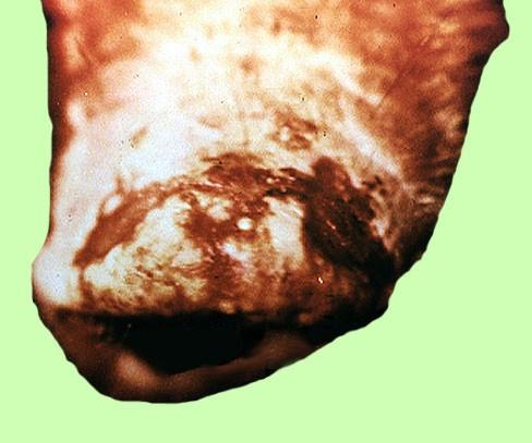 الطفح الحويصلى للخنازير vesicular exanthema of swine : حويصلة منفجرة على الفنطيه