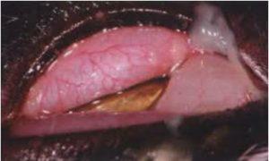 التهاب الملتحمه الصديدي في قطه نتيجه للاصابه بالكلاميديا