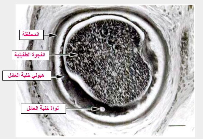 تركيبة حويصلة البسنيوتا Besnoitia بالمجهر الضوئي
