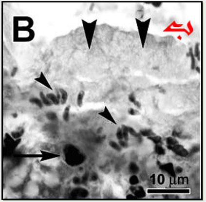 تركيبة حويصلة البسنيوتا Besnoitia بالمجهر الإلكتروني : ب – متسارعات حرة . الشكل القوسى المميز Tachyzoite