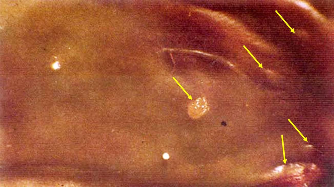 داء البسنيونا Besnoitia في ظبي : حبيبومات بها موات و تحتوي على حويصلات الطفيل علي فتحات الأنف