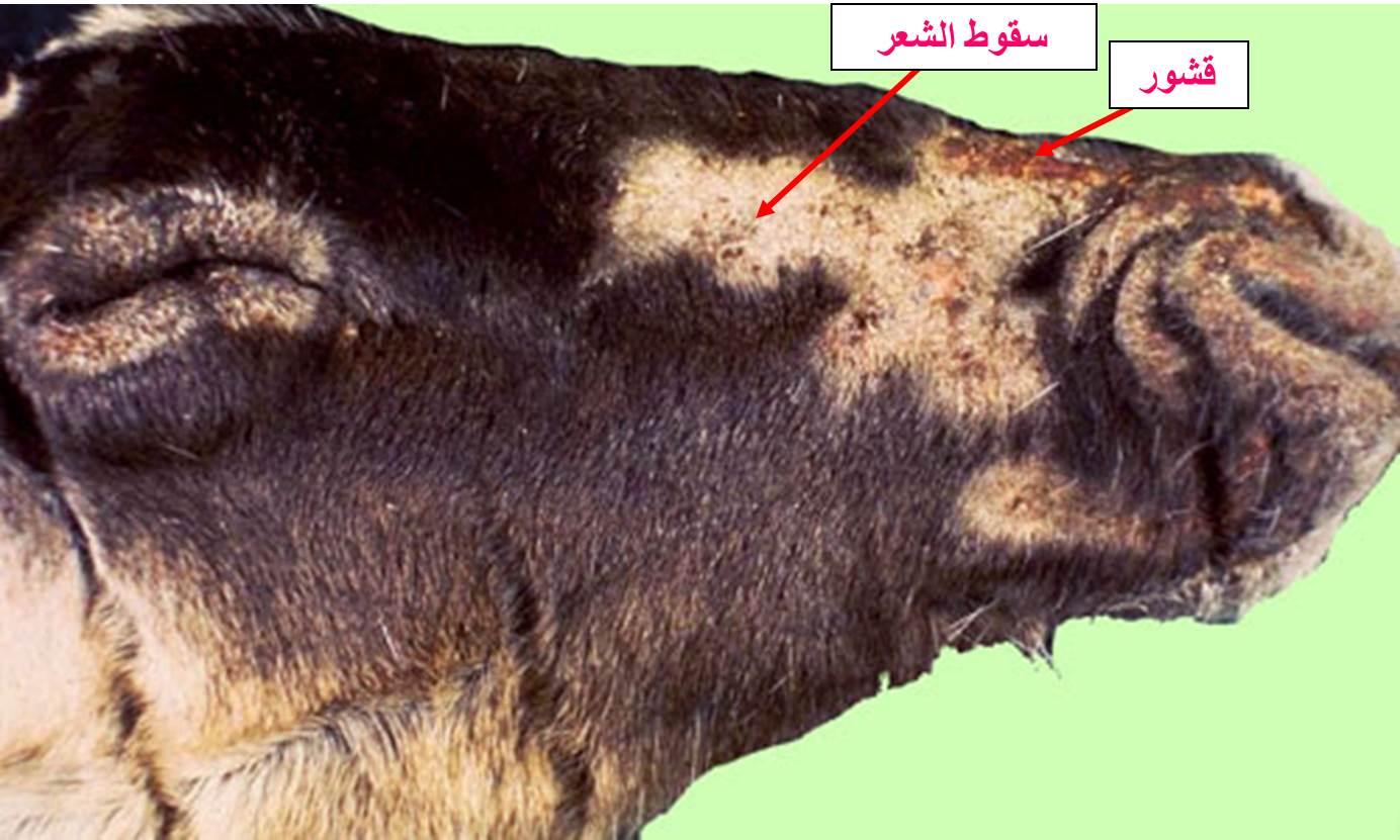 داء البسنيوتا Besnoitia حيوان الرنة : سقوط الشعر مع قشور على جلد الوجه