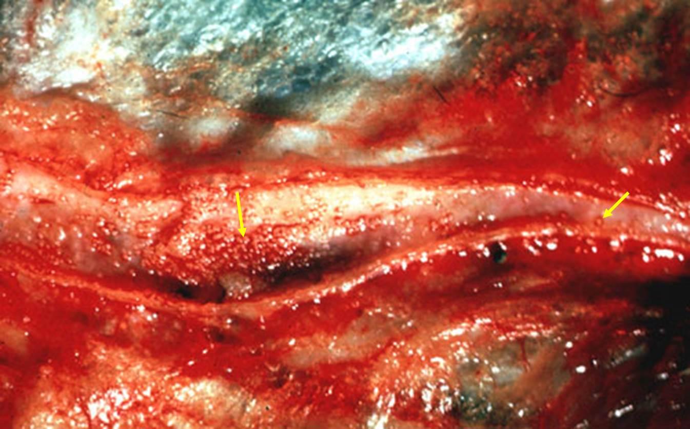 داء البسنيوتا Besnoitia بقره : الوريد الوجهي : حبيبومات مع نقط موات بيضاء.