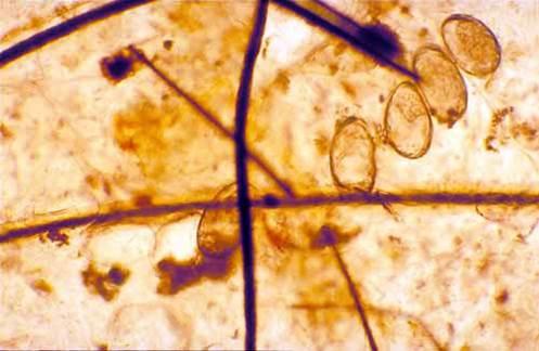 دورة حياة السوسة القارمة الجلبية Sarcoptic scabiei mite : أنفاق في الجلد تحتوى علي بيض السوسة القارمة الجلبية.