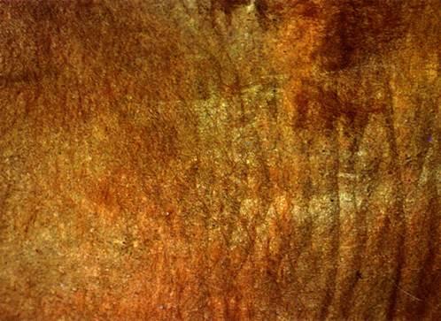 الجرب القارمى الجلبى للابقار (Sarcoptic scabiei mite) : الجلد جاف و سميك و مغطى بجلبات ( تكبير أعلى )