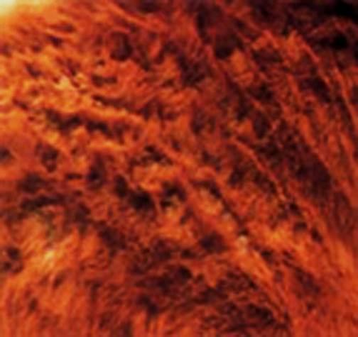 السوسة القارمة الجلبية للخيول ( Sarcoptic scabiei mite var equi ) : جرب قارمى جلبى على أكتاف حصان