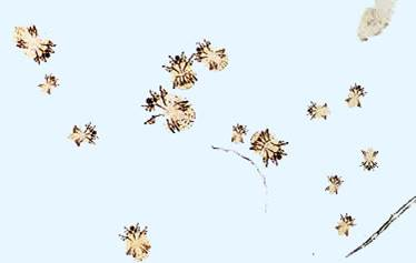 السوسة القارمة الجلبية للخنازير (Sarcoptic scabiei mite var suis ) : القارمات الخنزيرية